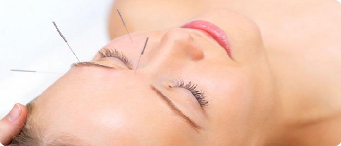 acupuncture-face